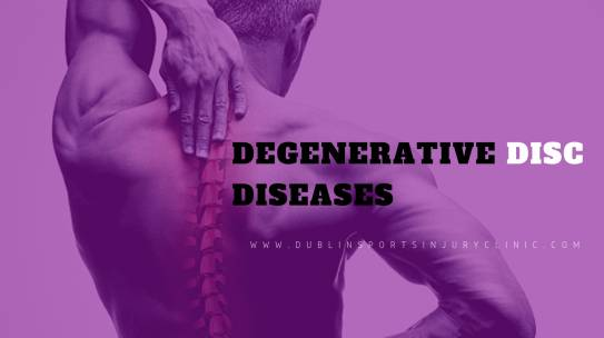 Degenerative Disc Disease (Back Pain)